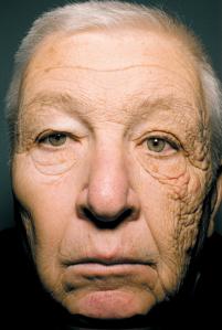A dermatoheliosis unilateral fai que un dos a lados da cara envelleza máis á présa ca o outro.